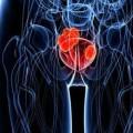 Brzi testovi za urinarne i vaginalne infekcije
