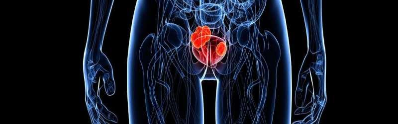 Preparati za izliječenje tegoba uro-genitalnog sustava